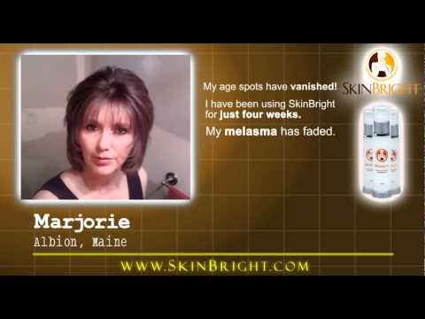 SkinBright Reviews - How To Get Rid Of Age Spots On Face And Hands.