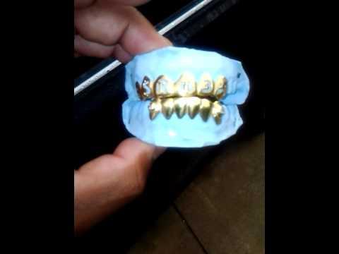 22kt DENTAL gold grillz/gold teeth