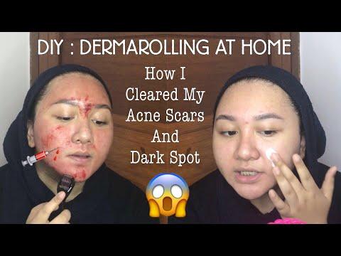 DIY : DERMAROLLING AT HOME | Cara memudarkan Bopeng Bekas Jerawat | Bahasa Indonesia | Diendiana