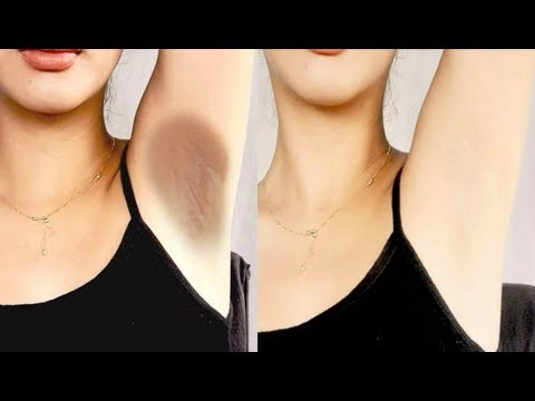 How To Lighten Your Dark Underarms Permanently - 100% Effective Home Remedy For Dark Body Parts