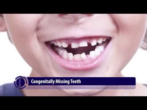 Congenitally Missing Teeth | Abnormalities in Tooth Quantity- 3