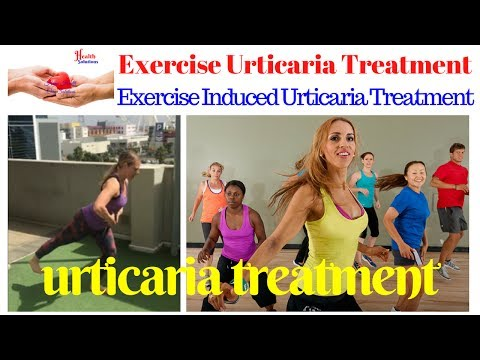 Exercise Induced Urticaria - Exercise Urticaria - Exercise Induced Urticaria Treatment 😛
