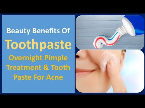 Beauty Benefits of Toothpaste | Overnight Pimple Treatment & Tooth paste for Acne