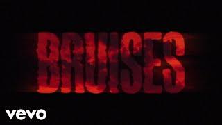 Lewis Capaldi - Bruises (Lyric Video)