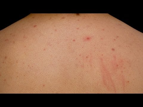 Get Rid of Back Acne & Chest Acne | Acne Treatment