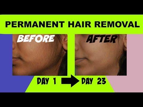 Unwanted Facial Hair? | Ayurvedic Home Remedy