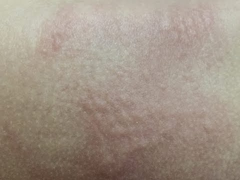How To Use Coconut Oil For Diaper Rash?