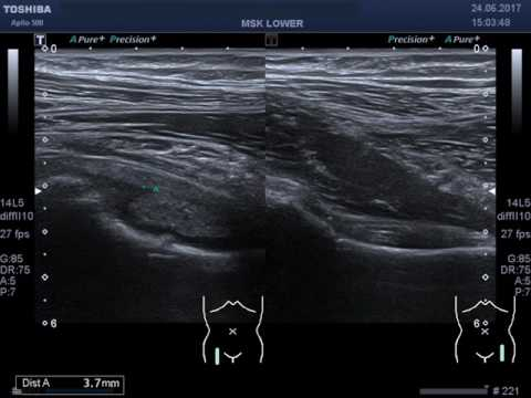 Synovitis of Right Hip Joint