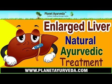 Enlarged Liver Ayurvedic Treatment   Liver Enlargement Natural Treatment