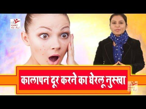 चेहरे के दाग-धब्बे और कालापन दूर करने का घरेलु नुस्खा || How to Get Rid of Dark || Remove spots,Acne
