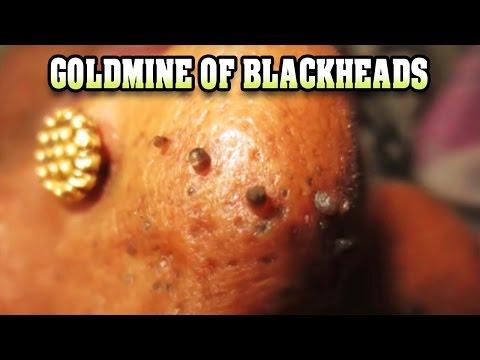Goldmine of Blackheads 2017!  Dr. Vikram Biography 😂