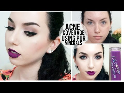 ACNE COVERAGE | Pur Minerals, Maybelline Better Skin Concealer & NEW Colour Pop Ultra Matte Lipstick