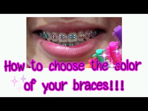 How to choose the color of your braces!!!
