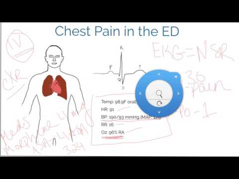 Time Management in the ED and ICU (chest pain patient)