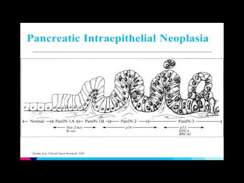Prevention and Screening in Pancreatic Cancer