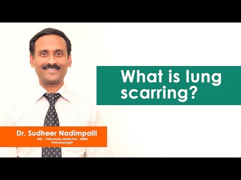 Scarring of Lungs By - Dr.Sudheer Nadimpalli