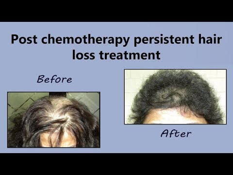 Grow Your Hair Back After Chemotherapy | Best Hair Growth Treatment
