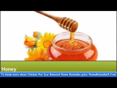 Chicken Pox Scar Removal Home Remedies -  Best Home Remedies For Scar Removal