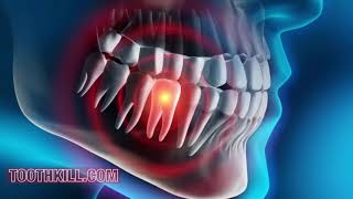 HOW DANGEROUS IS YOUR TOOTHACHE TO YOUR HEALTH