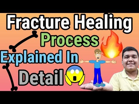 Fracture/Bone Healing Process Explained In Hindi