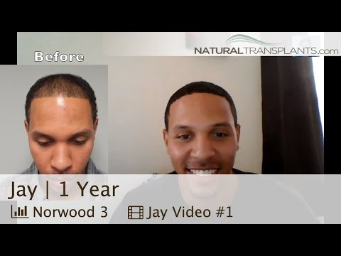 African American Male Hair Loss Treatment | Black Men Hair Growth Result (Jay)