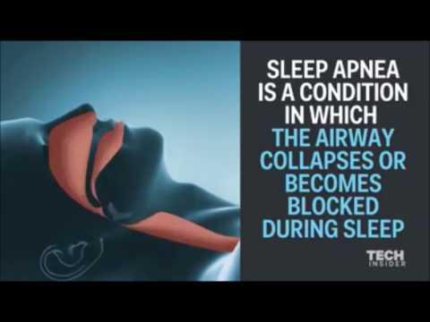 MICPAP™ Micro CPAP Device for Sleep Apnea + Snoring