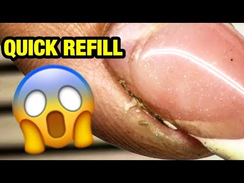 Amazing Transformation! HOW TO QUICK REFILL RUINED GEL NAILS AT HOME?!! NEW NAIL ART 2018