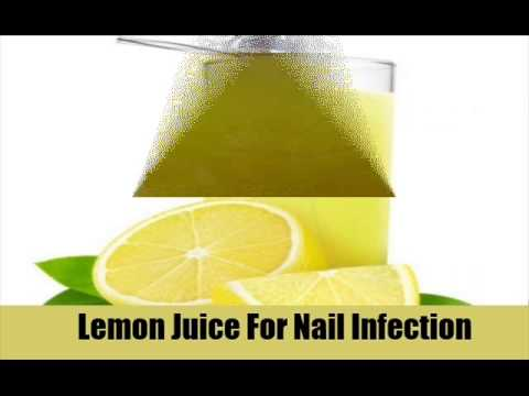 9 Home Remedies For Nail Infection