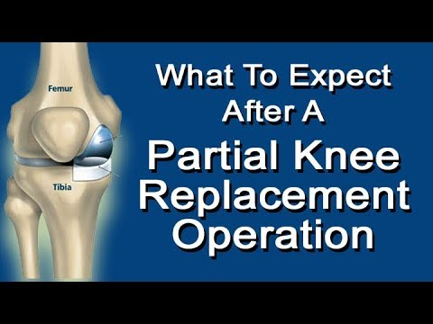 What To Expect After A Partial Knee Replacement Operation