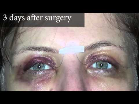 Upper Eyelid Surgery Photos of a Real Patient and Video Account of Three Days After Surgery