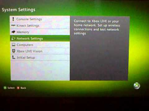 Xbox NAT setting issues Malaysia P1 Wimax