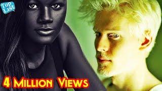 6 People with Unique Skin Color | Most Unique Skin colors |  Freckles Facts