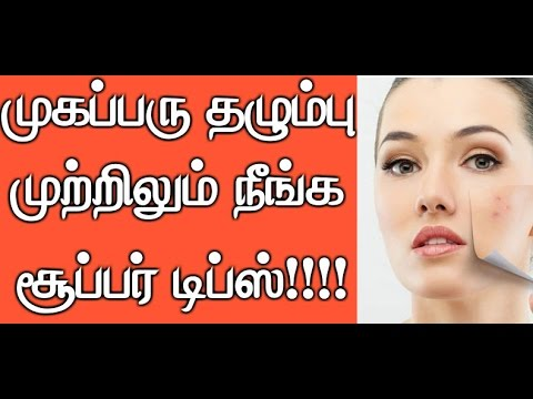 How to Remove Pimple Marks Naturally at Home in Tamil - (Video) | Beauty Tips in Tamil