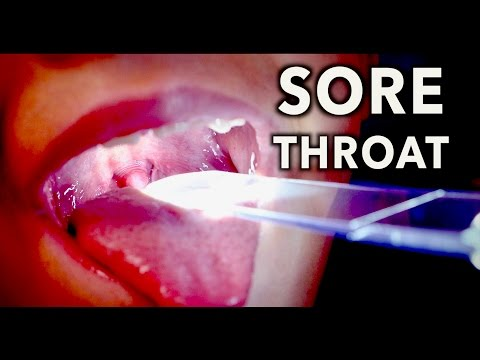 PAINFUL STREP THROAT! | Dr. Paul