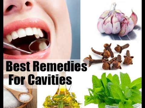 Cavity | How to Cure Cavities