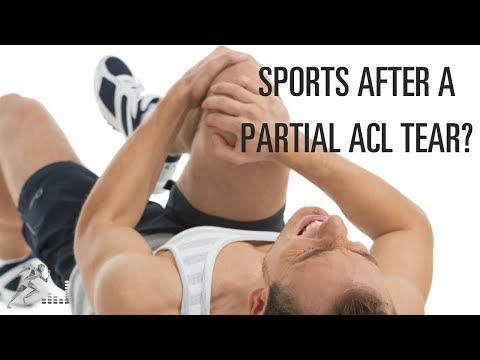 Can I play sports after a partial ACL tear?