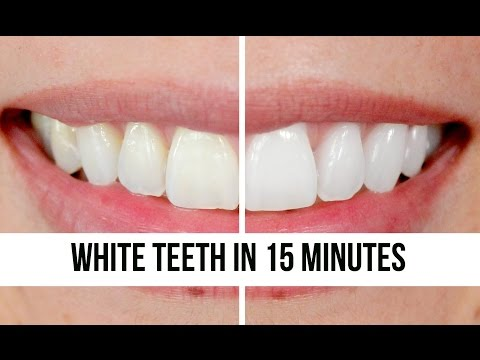 How to get WHITE TEETH in 15 minutes