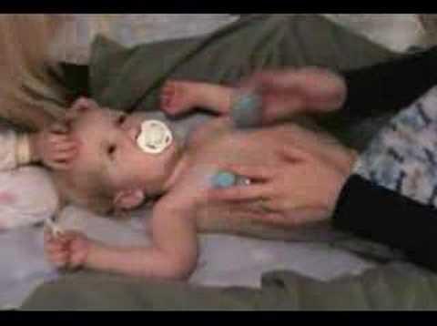 Cystic Fibrosis Physical Therapy of Toddler part 2