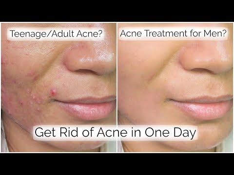 How To Get Rid Of Pimples in 1 Day || My ACNE SkinCare Routine