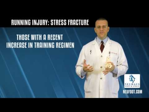 How Do I Know If I have a Stress Fracture?