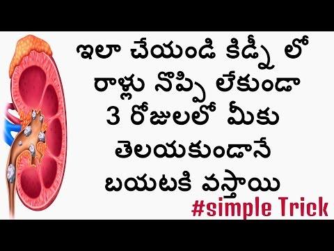 How to remove kidneys stones|#StorytodayTv