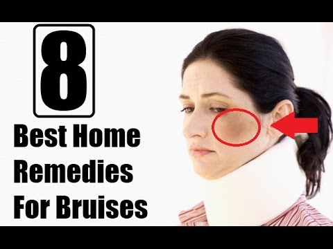 8 Best Home Remedies for Bruises