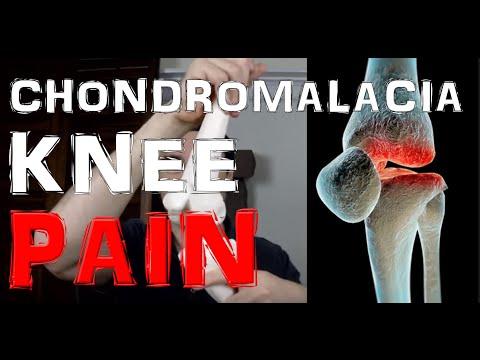About Chondromalacia Patellae & Knee Cracking