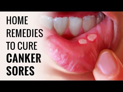 How To Get Rid of Canker Sores Fast Naturally Just In 2 Minutes
