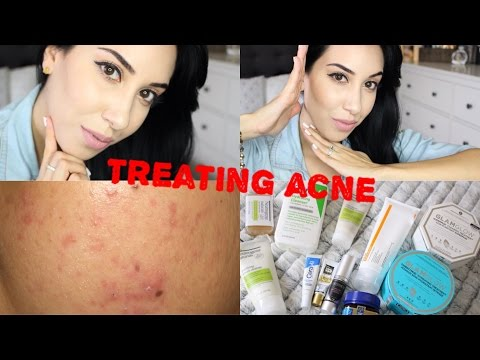 Daily Skin Care Routine ♥ Get Rid Of Acne & Scars
