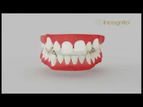 Incognito 2