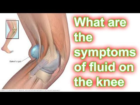 What are the symptoms of fluid on the knee?