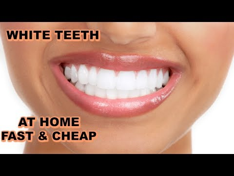 How I Whiten My Teeth Fast And Cheap 😃 😬