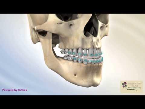 BSSO Mandibular Setback - Bracket