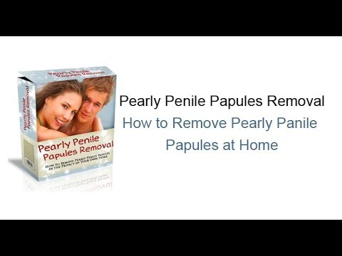 How To Permanently Remove Pearly Penile Papules?